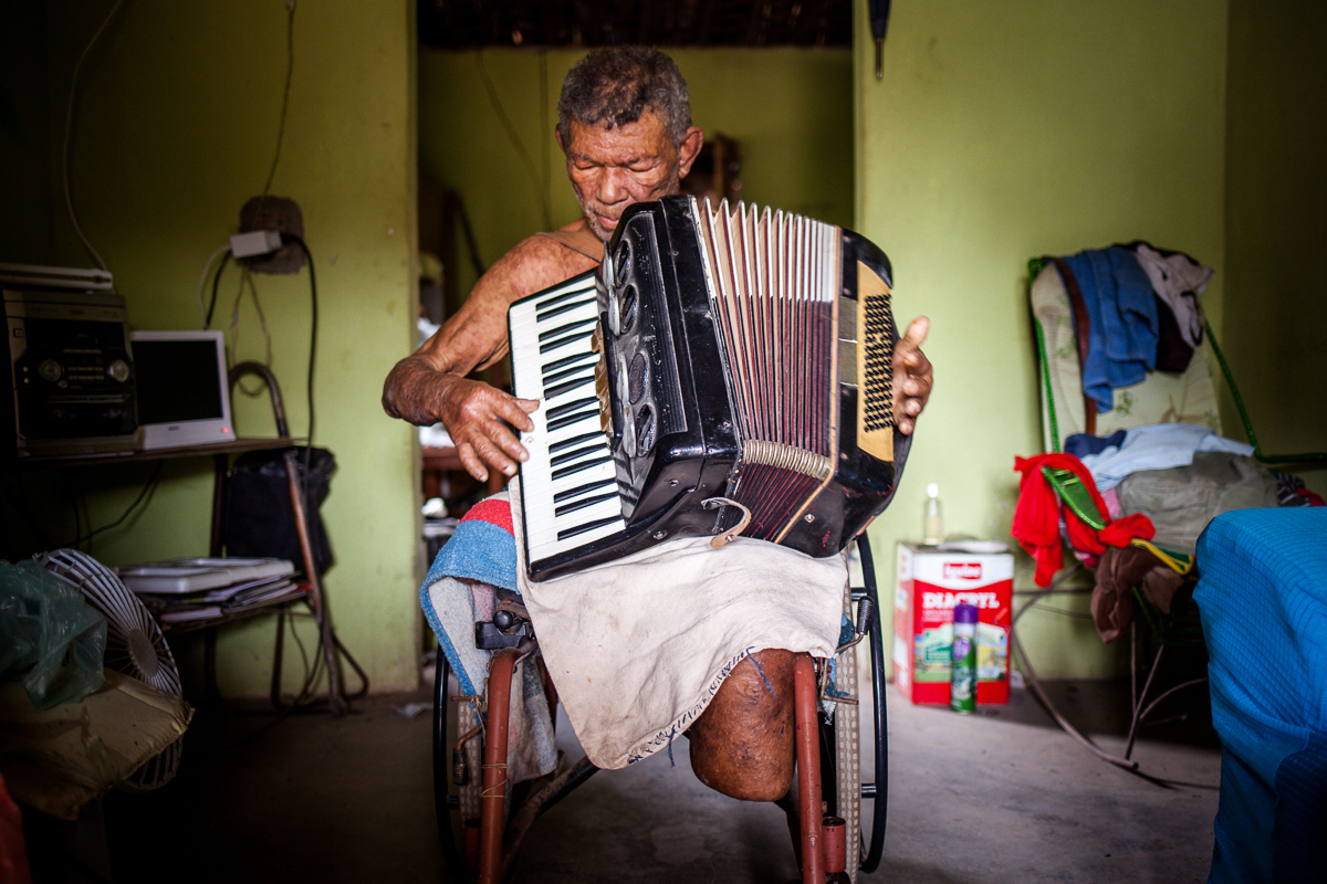 Paciente de Araçoiaba - PE. Foto: marcelo londono